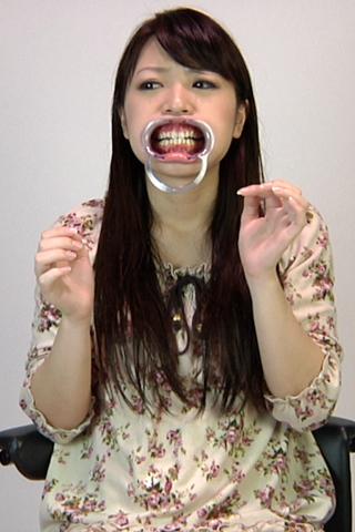 あいみの歯