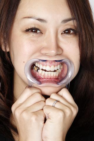 美熟女の歯、銀歯! 口内観察!画像写真27枚付