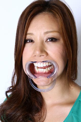 熟女の口内「歯」観察 データ写真付