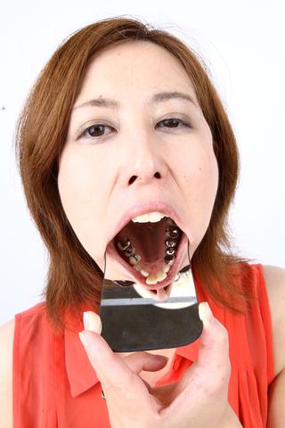 歯の観察2名分 写真データ付