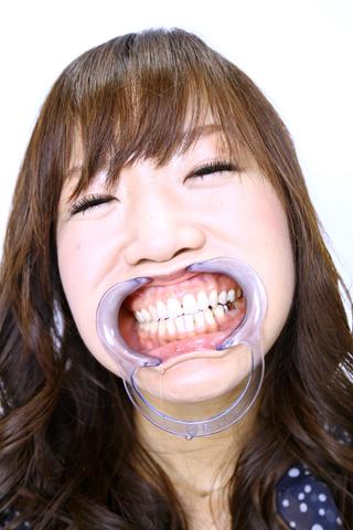 理花さんの「歯」観察