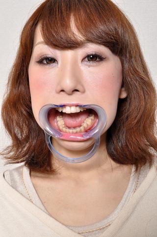 口内「歯」観察みなみチャンの巻画像データ写真付