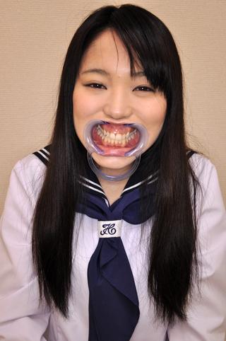 美しい歯、観察