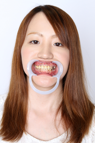 撃滅!崩壊歯 歯観察リカちゃん