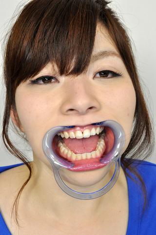 歯観察・神谷ゆきの口内事情