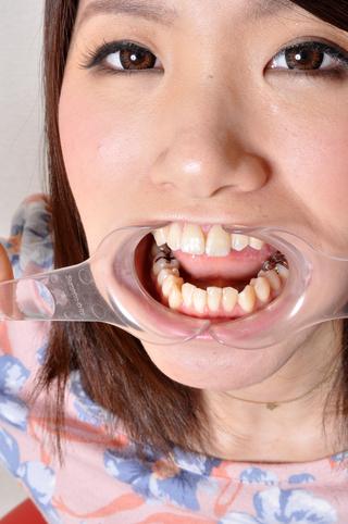 優子の歯、観察「美しき銀歯」