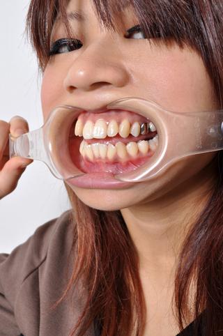 マリアさまの歯観察