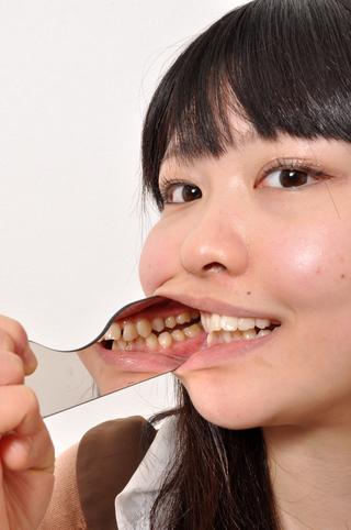 今井花菜チャンの可憐なワンポイント銀歯