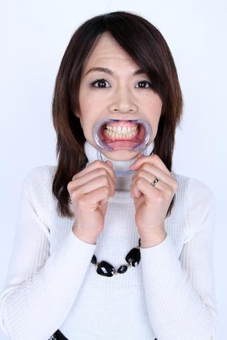 美熟女サンの歯観察