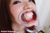 歯データ写真集⑤17人93枚!!