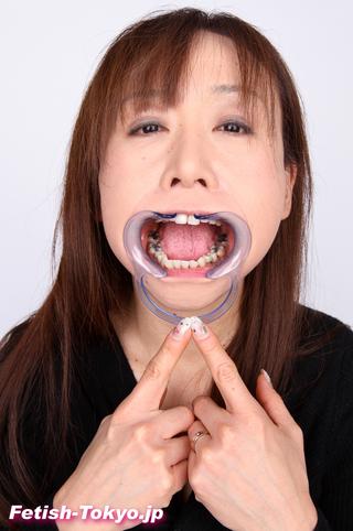 崩壊・銀歯・元歯科助手熟女さんの歯!