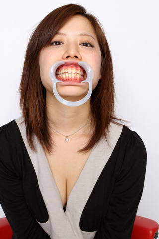美少女月野アンちゃん20歳の歯!「派」