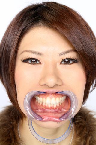 竹内美緒さんの歯観察