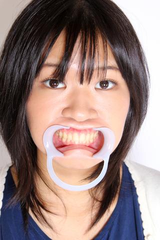 高沢沙耶 チャン 1年ぶりに歯を見せてくれます