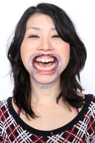 清楚系な人妻熟女さんの歯観察