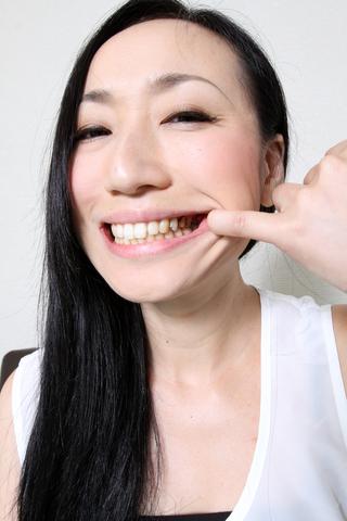 綾さんの歯