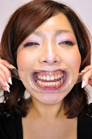 あさみちゃんは銀歯いっぱい
