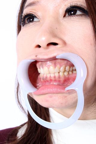 あおいさんの歯 金