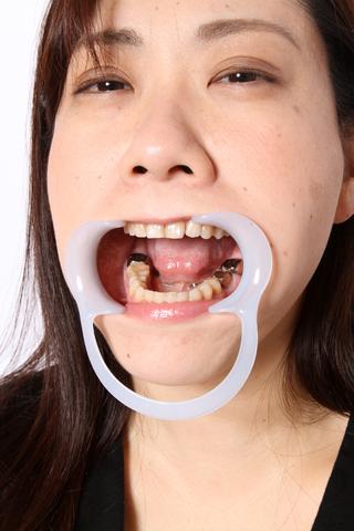 沢平秋乃さんの歯