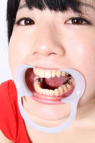 銀歯いっぱい安達まどかちゃん