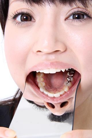 相沢レオナちゃんの歯