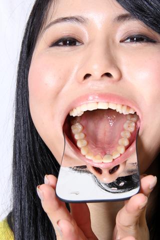 冬瀬ゆらちゃんの歯を撮影
