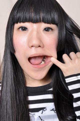 青井いちご 6番銀歯