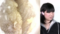 フェチ:耳穴観察 耳糞が多すぎて耳穴が塞がっちゃった!