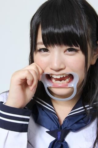 つな 片八重歯
