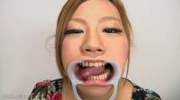 工藤亜美 汚歯 虫歯