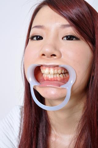 如月ゆうき 6番は銀歯と虫歯