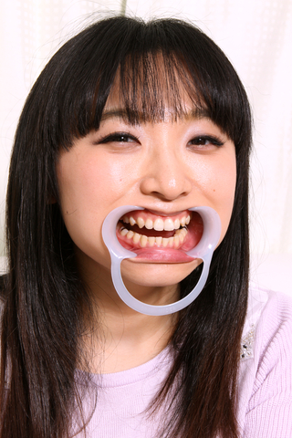 歯観察 インレーいっぱい咲希ちゃん