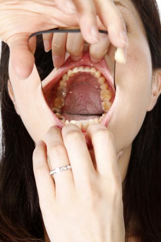 歯観察 画像データ数枚付き!