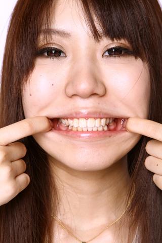 美少女あいの歯、観察 レア!データ写真20枚付