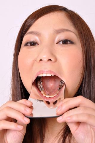 美女鈴チャンの銀歯観察!データ写真25枚付!