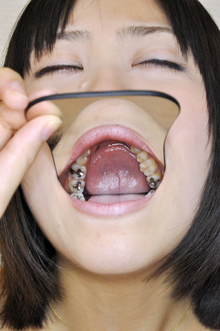 歯観察 彩華さん編データ写真13枚収録