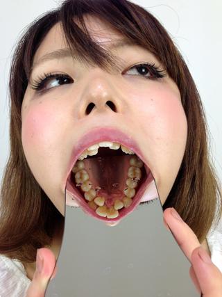 歯観察シホちゃん編