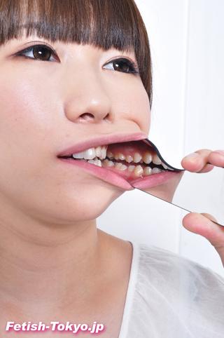 「歯」データ写真集2名分