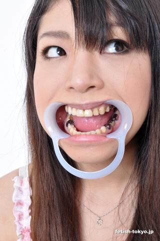 総選挙5位!激レア「銀歯」このみチャンの歯観察