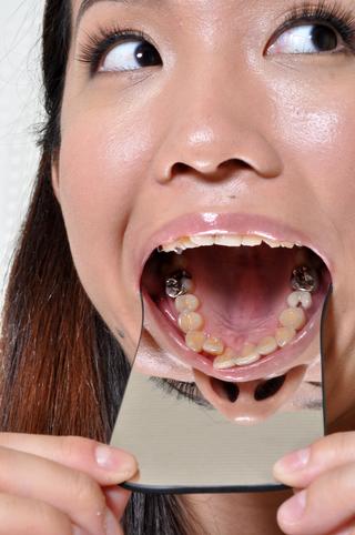 口内歯観察まどか編