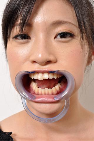 美女の歯 総選挙 vol.2 みんなで作る究極の1本