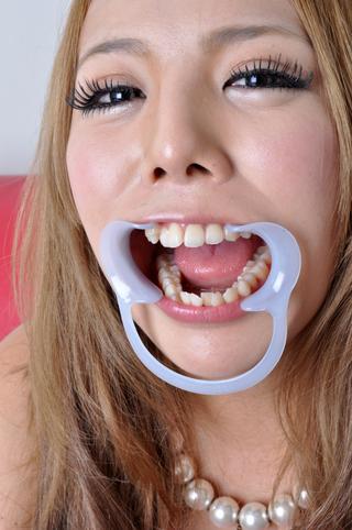 るなPの歯観察