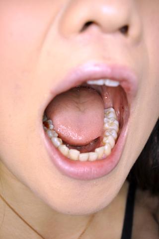千沙さんの歯カンサツ