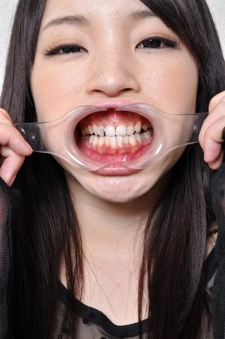 美女まりやチャンの歯観察