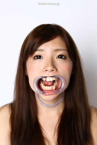 素人 里中唯ちゃんの天然歯!