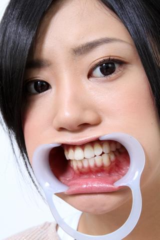 琥珀うたちゃんの歯観察!