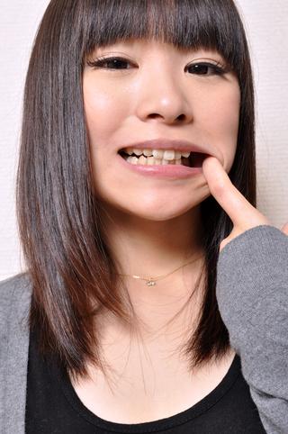 安達柚奈ちゃんの歯