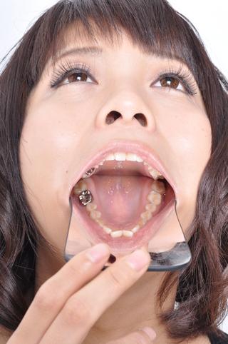 桜木郁 ワンポイント銀歯