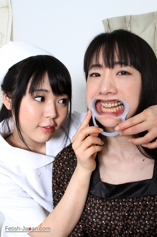 ゆい&優奈 処置歯をクリーニング