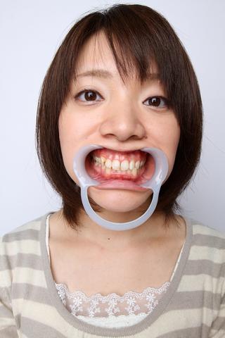 安田美保 6番銀歯